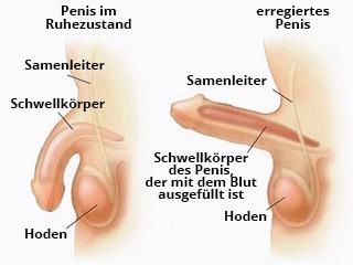 Wie man einen Penis aufbiegt